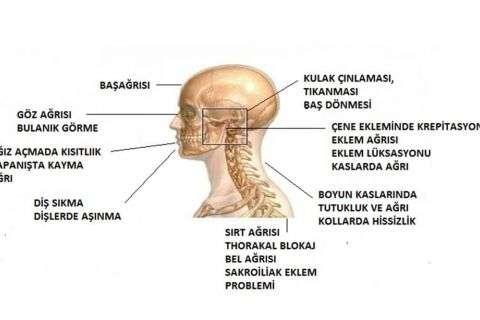 Çene Eklemi Hastalıkları